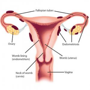 Andreia Trigo - Endometriosis