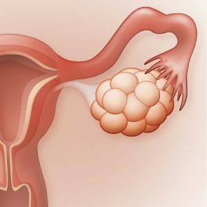 Andreia Trigo - Fertility Problems
