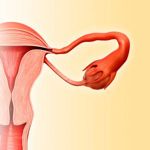 Andreia Trigo - Fallopian Tubes Problems